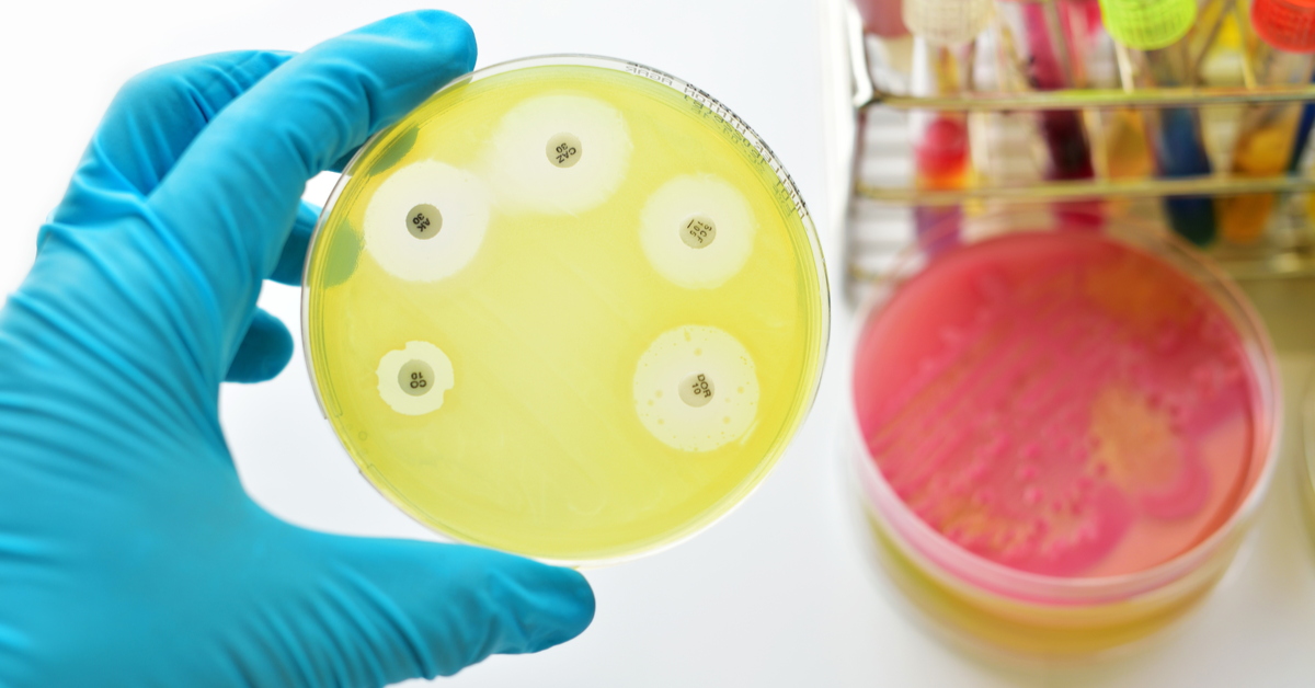 How To Identify Mold Or Mildew In Your Home